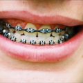 Foods you can eat when wearing braces